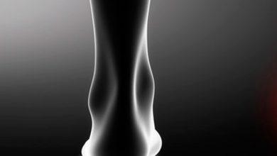 tornozelo 390x220 - Síndrome do Túnel do Tarso pode causar dor no tornozelo