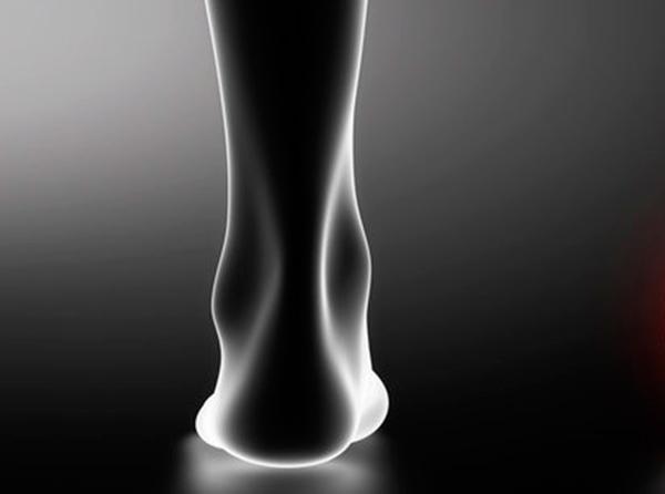 tornozelo - Síndrome do Túnel do Tarso pode causar dor no tornozelo