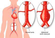aorta 220x150 - Aneurisma da Aorta pode ser tratada por cirurgia ou técnica endovascular