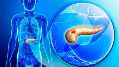cancer500 390x220 - Pesquisadores criam biossensor capaz de diagnosticar câncer de pâncreas