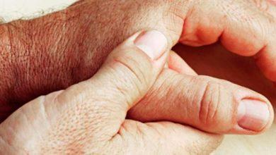 mão 390x220 - Cistos sinoviais são os tumores mais frequentes na mão