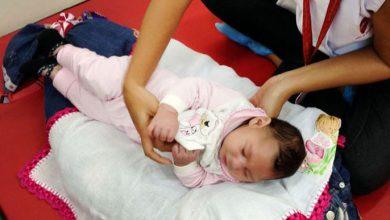 microcefalia 390x220 - Indefinição sobre compra atrasa entrega de remédio para bebês com zika