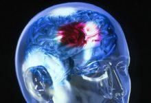 neuro 1 220x150 - Médico explica a causa de pessoas mais jovens sofrerem um AVC