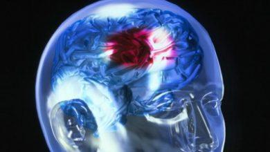 neuro 1 390x220 - Médico explica a causa de pessoas mais jovens sofrerem um AVC