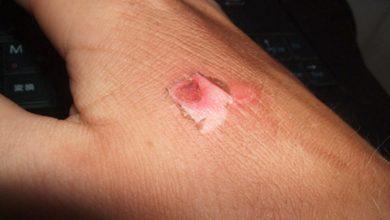 queimadura 390x220 - Queimaduras: 77% acontecem em ambientes domésticos
