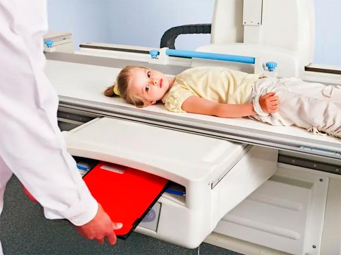 raioxc - Pediatras pedem uso racional de exames por imagens em crianças