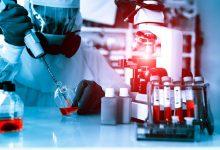 shutterstock 208963570 220x150 - DSTs: superbactéria da gonorreia pode tornar-se intratável