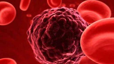 cancer 1 390x220 - HCor desenvolve vacina que combate o tumor cerebral