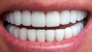 dent 390x220 - Os perigos do carvão ativado para o clareamento dos dentes