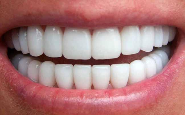 Os Perigos Do Carvao Ativado Para O Clareamento Dos Dentes Revista