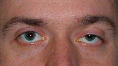 palp 390x220 - Síndrome de Marcos Gunn causa ptose palpebral conforme movimentos da mandíbula
