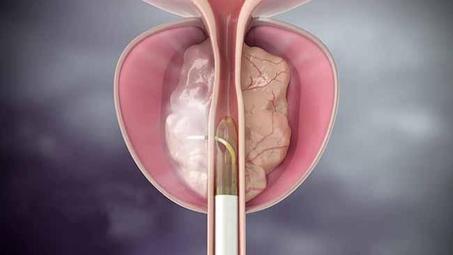 Próstata Hiperplasia Benigna Prostática - 7 Mitos sobre Hiperplasia Benigna Prostática