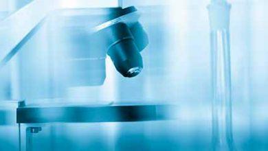 lab1 390x220 - Pesquisa avalia benefício do benzonidazol na doença de Chagas