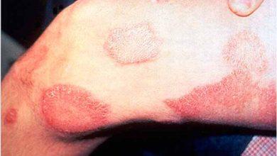 Photo of Hanseníase: lepra ainda é muito comum no Brasil