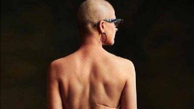 combate ao câncer 390x220 - No dia de combate ao câncer, entidades defendem rapidez em diagnóstico