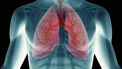 pulm 1 390x220 - Doença pulmonar rara tem sinais parecidos com os de outras doenças