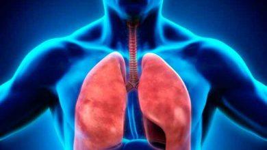 pulm 390x220 - Inflamação crônica pode causar anemia ligada à tuberculose