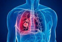 Sintomas da tuberculose 1 220x150 - Hoje, 24 de março, Dia Mundial de Combate à Tuberculose