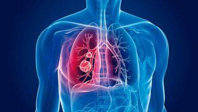 Sintomas da tuberculose 1 390x220 - Hoje, 24 de março, Dia Mundial de Combate à Tuberculose