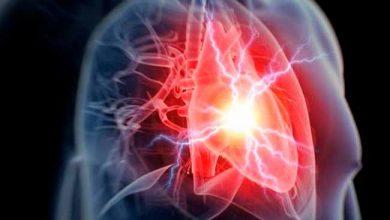 infcor 390x220 - Sintomas menos conhecidos do infarto