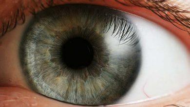 olhofra 390x220 - Os problemas de visão mais comuns na Síndrome de Down