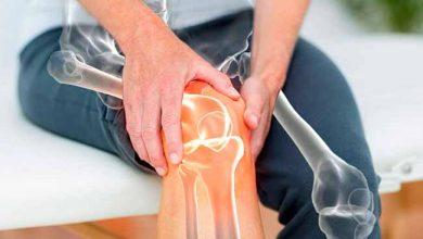 ossotop 390x220 - Osteoporose: a doença dos ossos frágeis e quebradiços