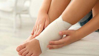 pemach 390x220 - Tratamento de torção de pé