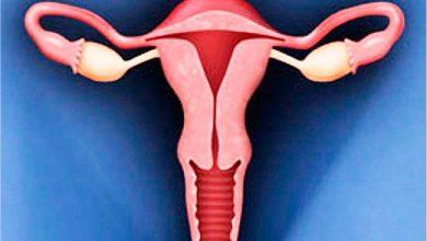 Photo of Histerectomia: quando é indicada a retirada do útero