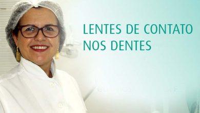 Dra. Rosani Bischoff Novo Hamburgo  390x220 - Lentes de contato é alternativa para sorriso perfeito