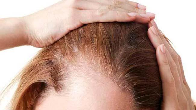 Afinamento dos cabelos
