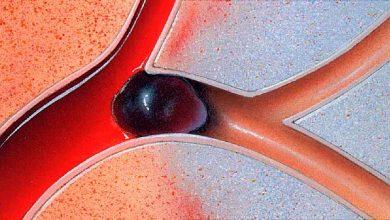 card 1 390x220 - Artérias podem envelhecer mais que a idade dos pacientes