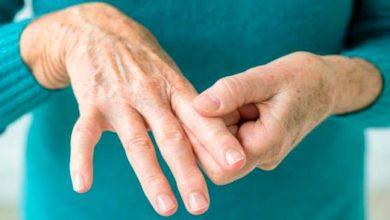 dor3 390x220 - Gota: tratamento da artrite gotosa