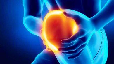 dor 3 390x220 - Osteocondrite dissecante causa dor, fraqueza e inchaço