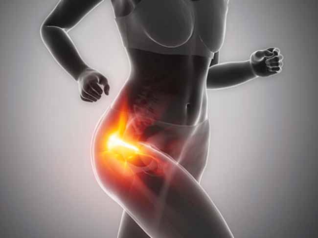 dor 5 - Exercícios para fortalecer os quadris