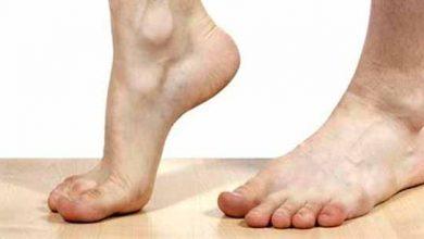 Photo of Tendinite nos pés e tornozelos