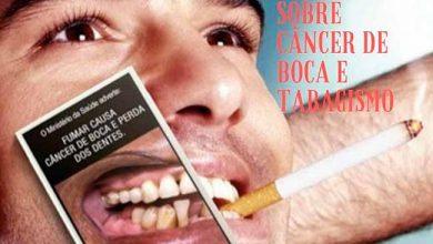 dois irmaos canc 390x220 - Palestra sobre o câncer de boca nesta quarta-feira em Dois Irmãos