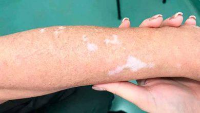 vitiligo dra.Caroline Antunes 03 390x220 - Condição emocional e genética são fatores propensos ao vitiligo
