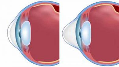 cerato 390x220 - Ceratocone: doença pode levar à cegueira