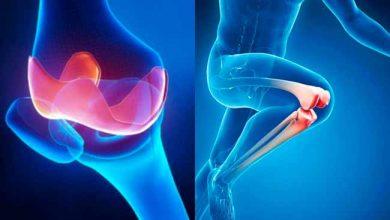 Photo of Câncer nos ossos: tipos, sintomas e tratamentos