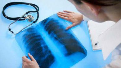 Revista News cpul-390x220 Morte por câncer de pulmão entre mulheres estabilizado em 2030