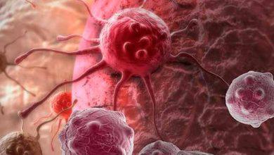 Photo of Sintomas vagos dificultam diagnóstico do linfoma