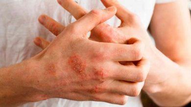 Photo of Dermatite atópica: doença crônica pode ser controlada