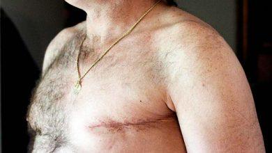 Photo of Homens também desenvolvem câncer de mama