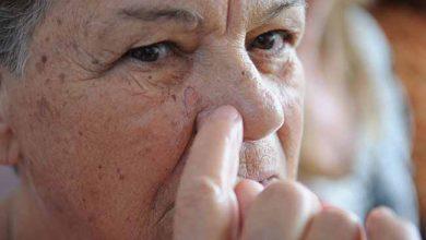 Photo of Pesquisadores da Unicamp criam software para diagnosticar melanoma