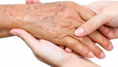 Photo of Problemas de pele que se manifestam por manchas
