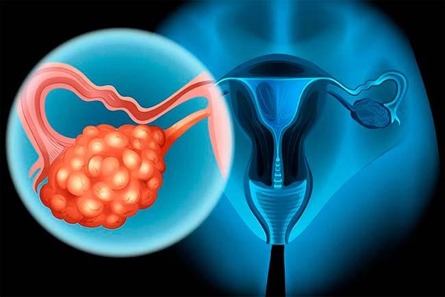 Câncer de ovário: oito entre dez casos são descobertos em fase avançada —  Revista News